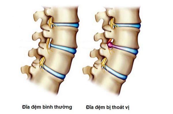 Bệnh thoát vị đĩa đệm là bệnh xương khớp phổ biến