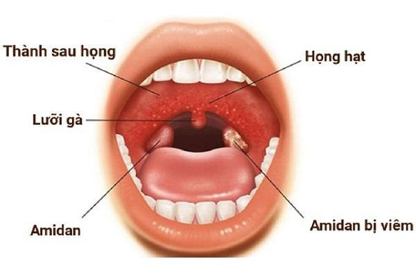 Viêm họng hạt rất nguy hiểm