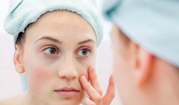Bệnh Lupus ban đỏ: nguyên nhân và cách điều trị như thế nào?