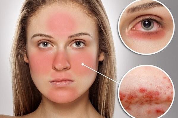 Bệnh Lupus ban đỏ có thể gây ra những biến chứng gì?