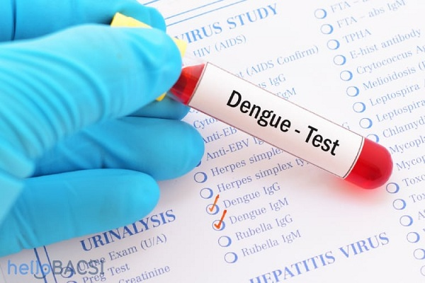 Kết quả xét nghiệm máu như thế nào là sốt xuất huyết?