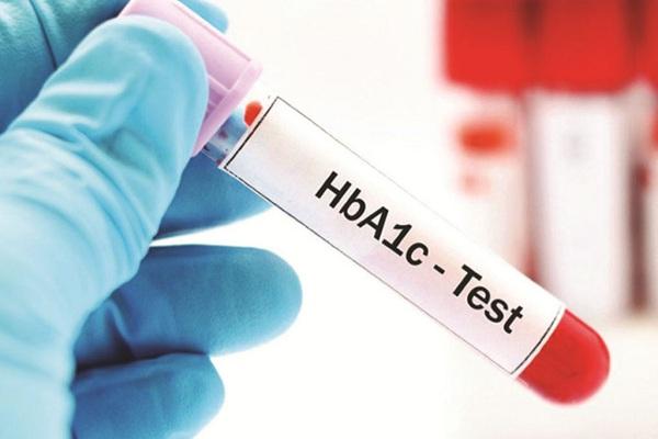Xét nghiệm chẩn đoán bệnh tiểu đường