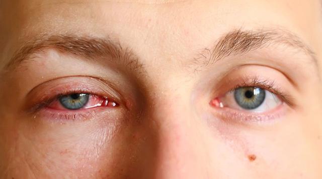 Hỏi đáp bệnh học: Đau mắt đỏ có bị lây khi nhìn vào mắt hay không?
