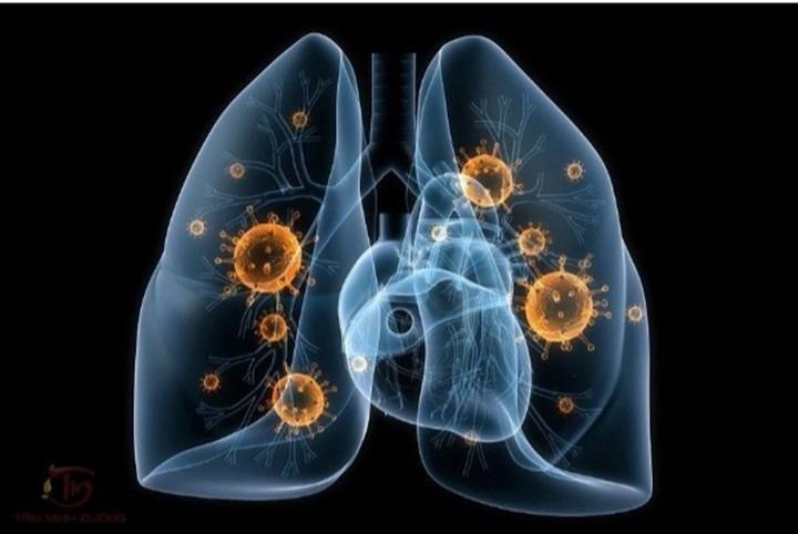 Hướng dẫn cách chăm sóc người bệnh lao phổi tại nhà