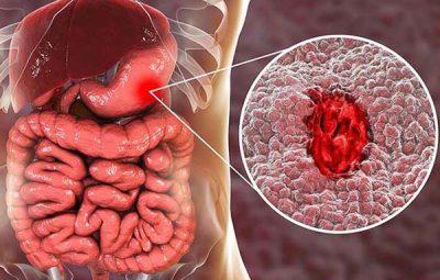 Hình ảnh xuất huyết dạ dày ở bệnh nhân